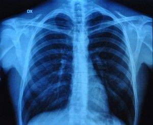 What is Chronic Obstructive Pulmonary Disease?